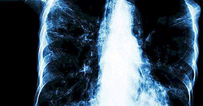 Die Am Wenigsten Von Tuberkulose Betroffenen Länder